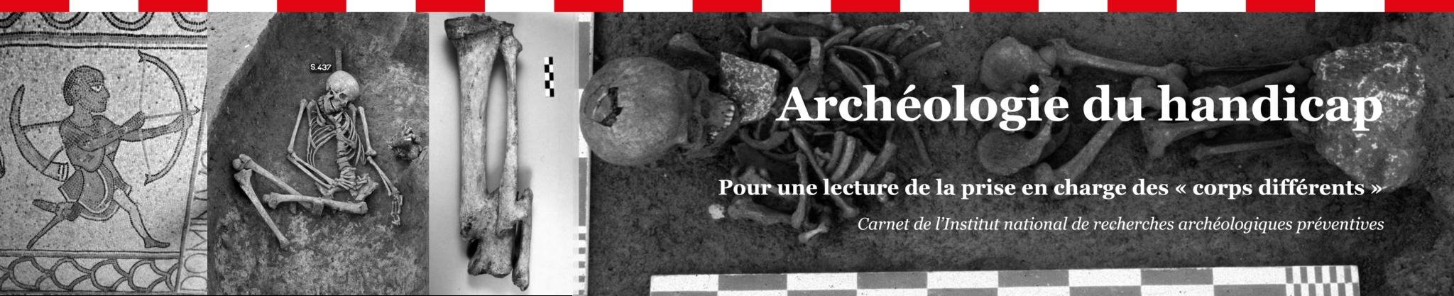 Archéologie du hadicap
